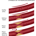 Artery damage from cholesterol