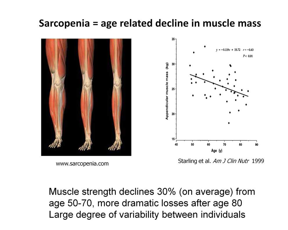 Sarcopenia - age related muscle mass loss